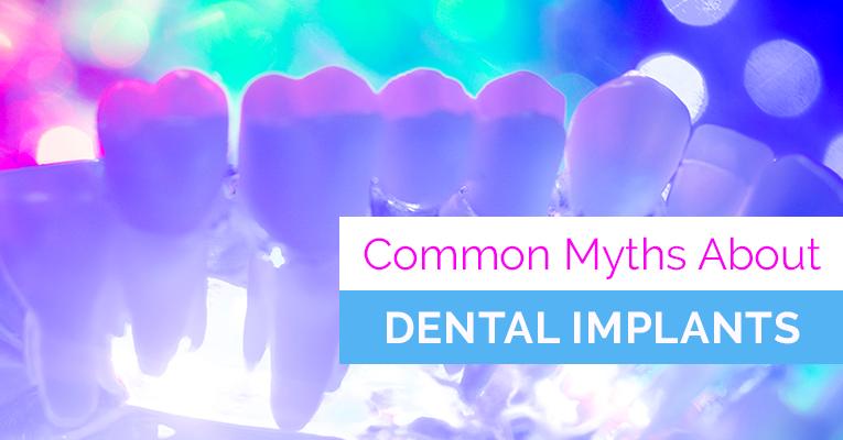 Common Dental Implant Myths